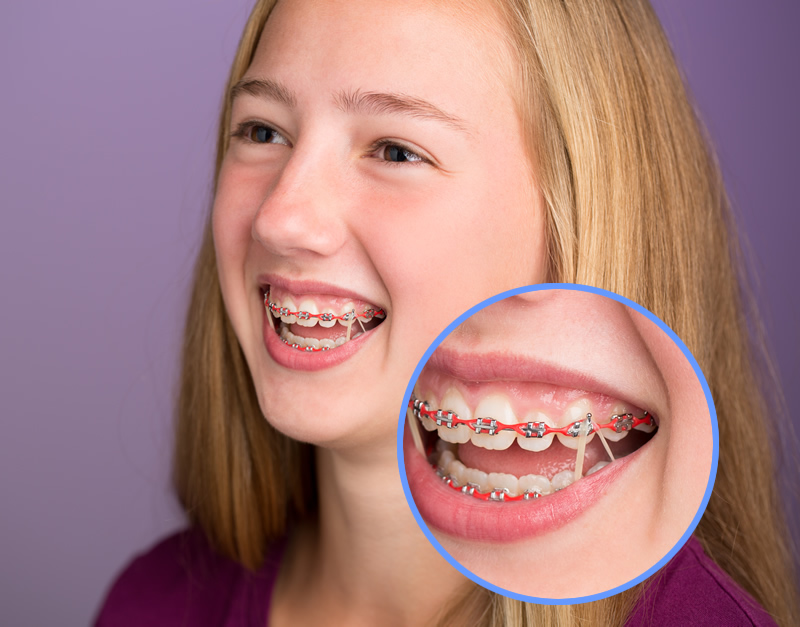 Orthodontic Treatment Options American Association Of Orthodontists
