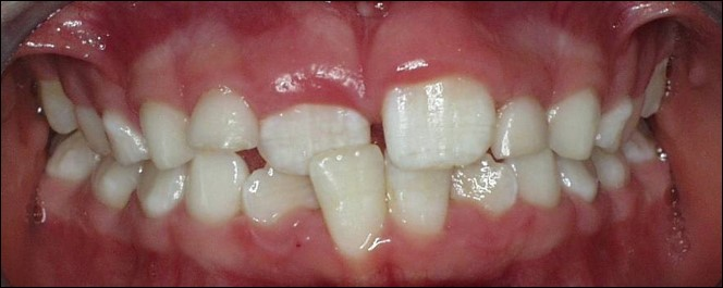 common bite problems: anterior crossbite