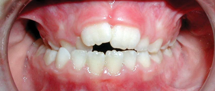 common bite problems: posterior crossbite